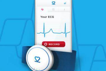 beat2phone Mobile ECG Monitor