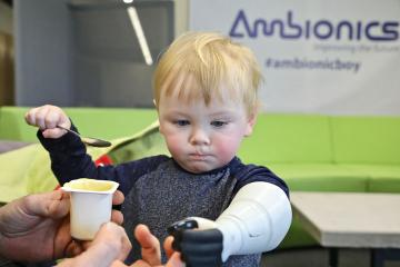 Ambionics' 3D Printed Hydraulic Prosthetic Arm for Children