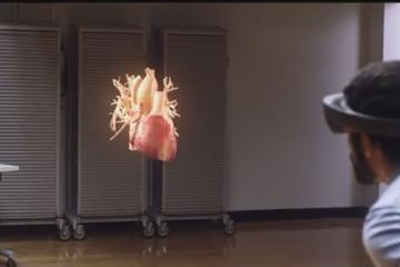 Microsoft HoloLens for Learning Anatomy