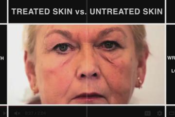 Second Skin Protects Dry Skin & Delivers Drugs