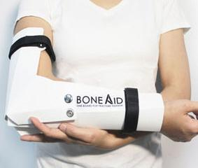 BoneAid Cast: Better Solution for Broken Body Parts?