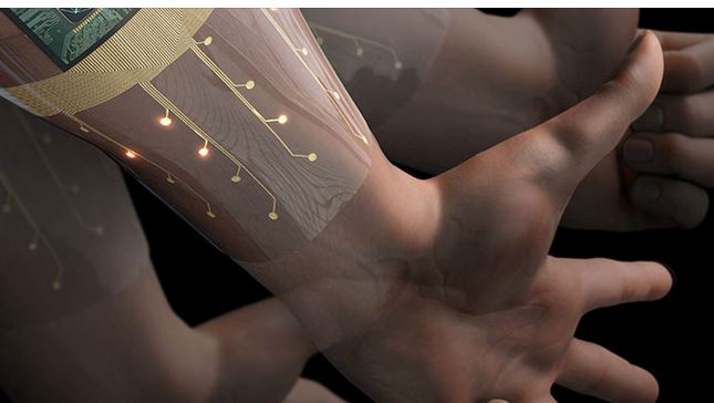 AI Armband Developed to Control Prosthetic Devices